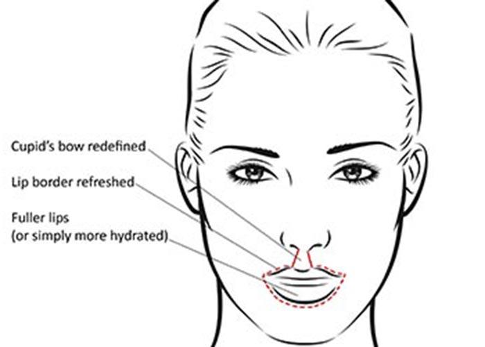 Defined Lips