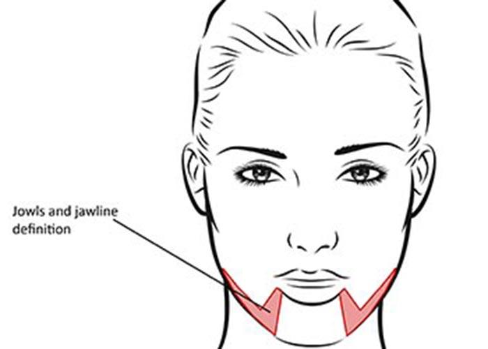 Jowls Jaw Line