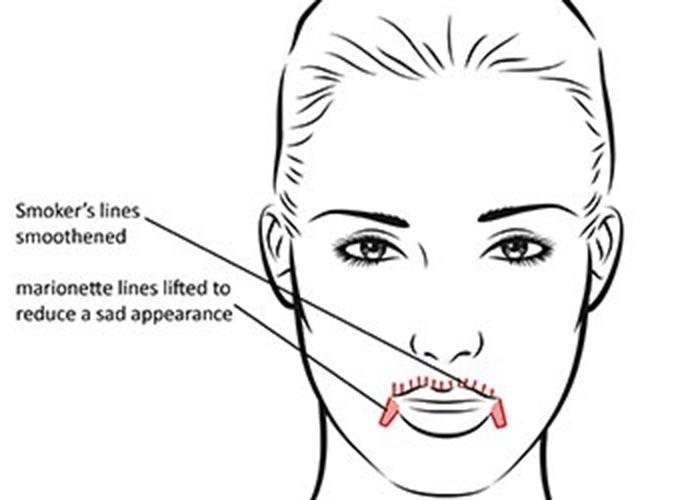 Smoker Lines